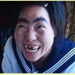 イモトアヤコの歯はなぜ無くなった?レントゲン画像!治療と矯正